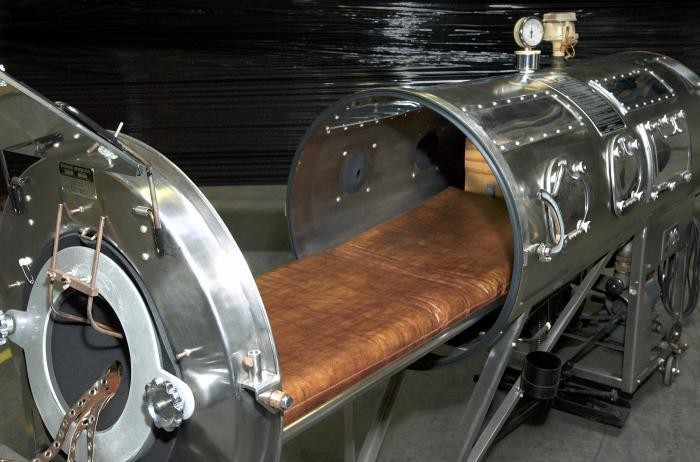 Iron lungs cost about $1,500 in the 1930's