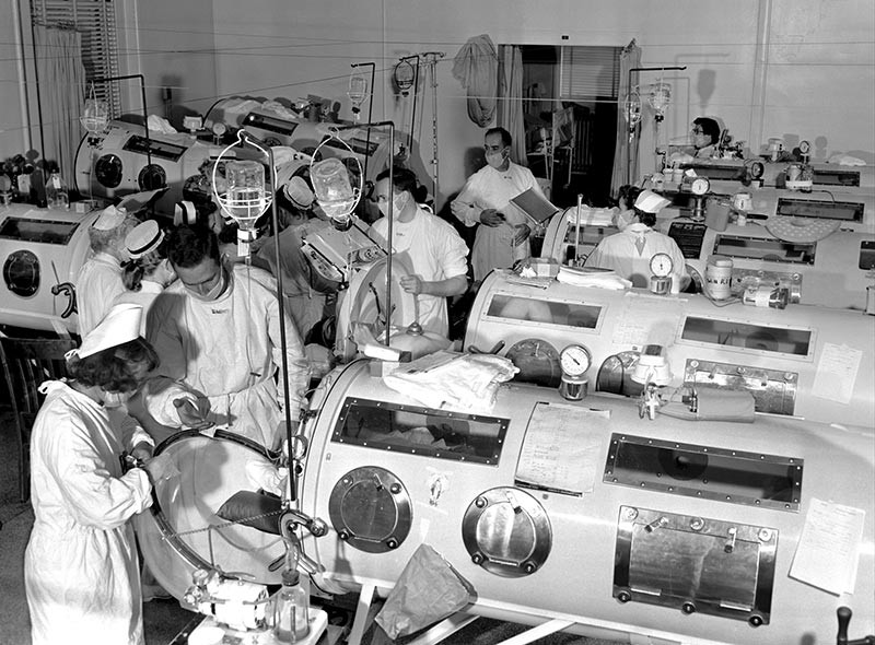 The iron lung polio peaked in 1952.